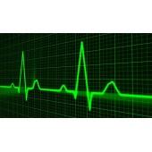 Nu ignorati semnele atacului cardiac!